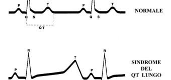 QT lungo ed intervallo corretto, quali i valori normali?