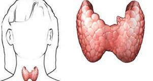 Anticorpi anti-tireoglobulina alti, bassi e valori normali