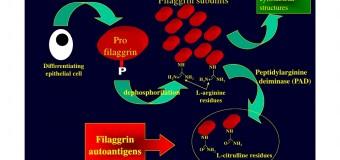 Anticorpi anticitrullina alti, bassi e valori normali