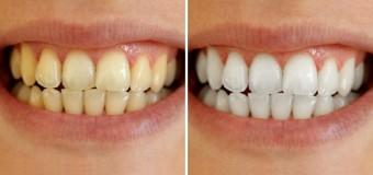 Sbiancamento dentale: rimedi naturali