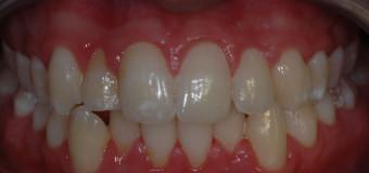 Piorrea dentale: cos'è e come si cura