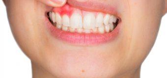 Denti e problemi: come risolvere